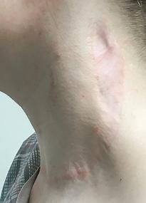 Photo of scar healed