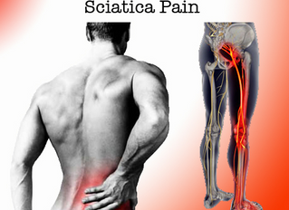 How Chiropractic Treats Sciatica