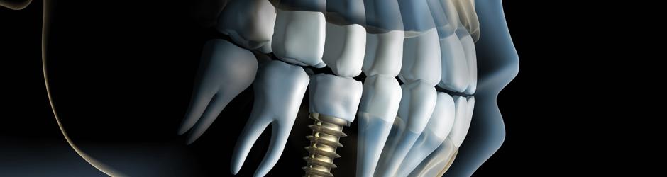 fornitori-impianti-dentali