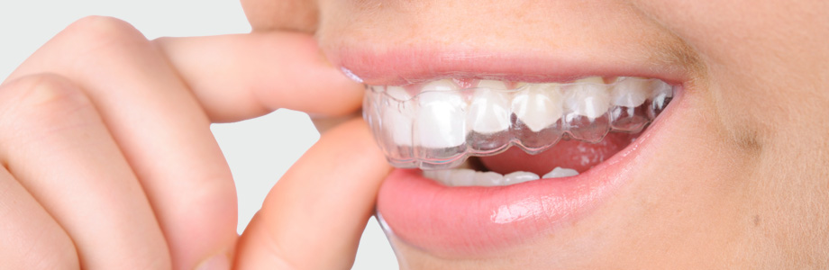 zahnkorrektur-orthocaps