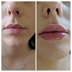 lips collage 1.jpg