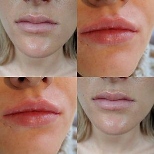 lips collage 2.jpg