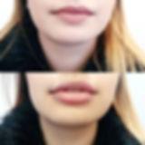 Advanced Lip clinic 💋__#lips#lipclinic#