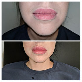 lips before and after.jpg