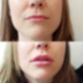 Little lips made bigger 💋__#lips #lipfi