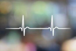 An electrocardiogram (EKG or ECG) is a t
