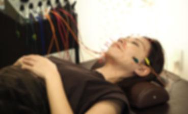顔の鍼に通電