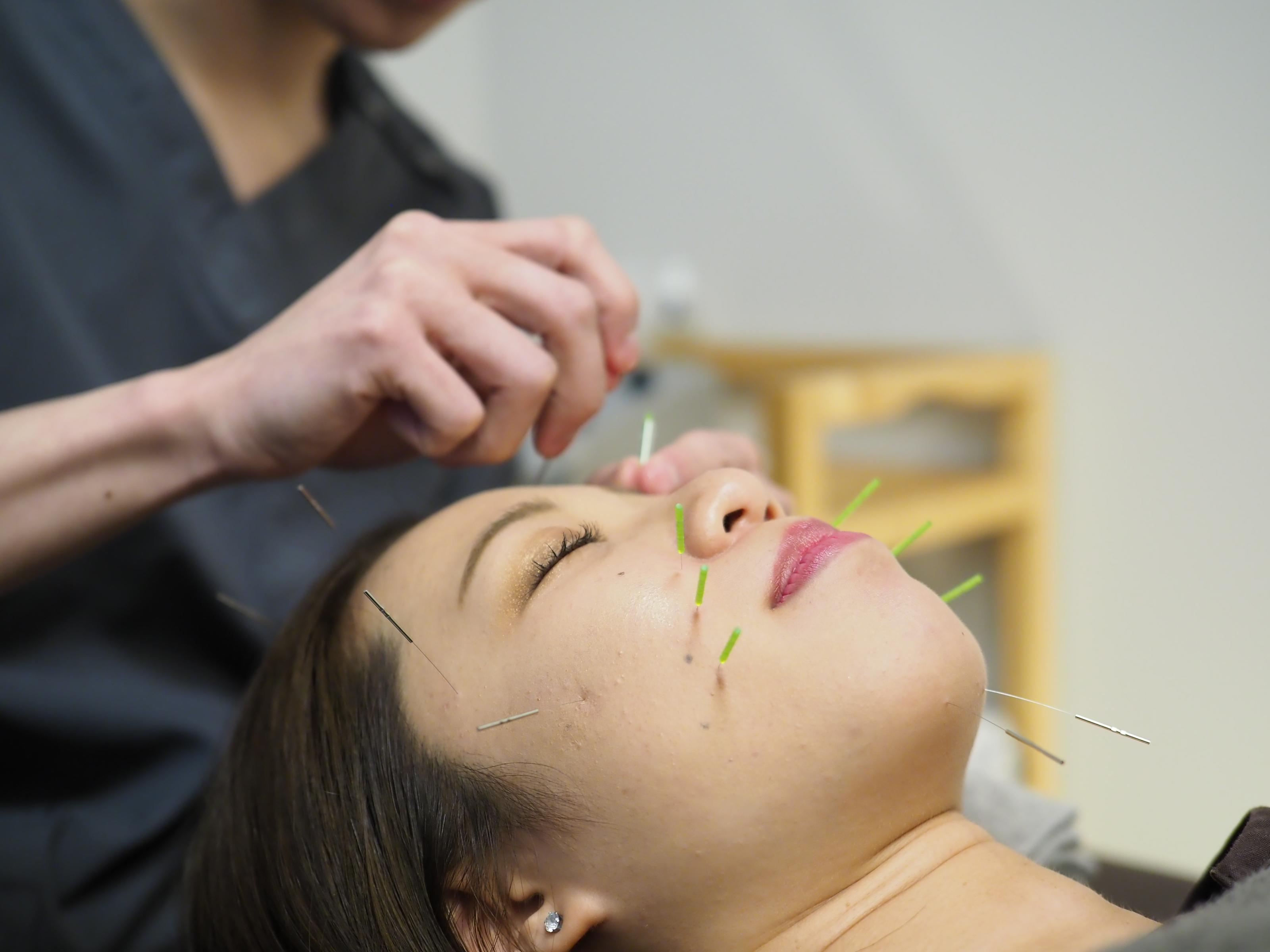 美容鍼灸トライアル