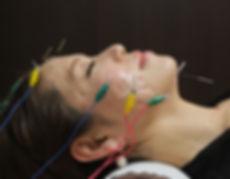 美容鍼灸コース