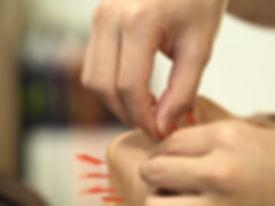 美容鍼灸トライアルコース