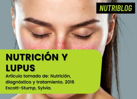 Nutrición y Lupus