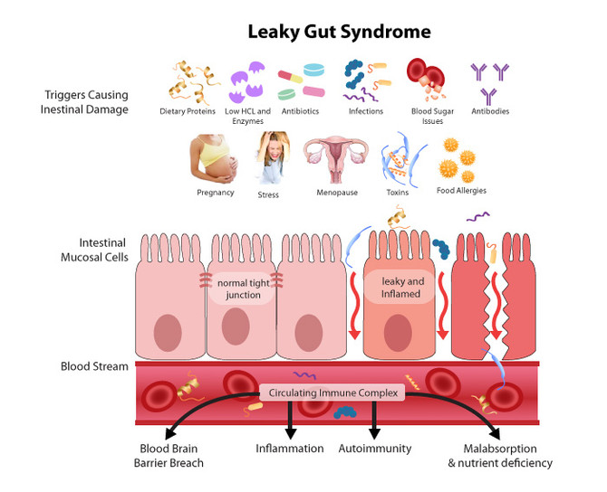 Is Leaky Gut The Cause of Your Health Problems?