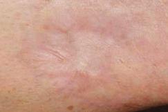 Traitement-des-cicatrices-B-apres-450.jp