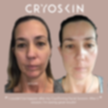IGPost_CryoX_Facial_Before-After.png
