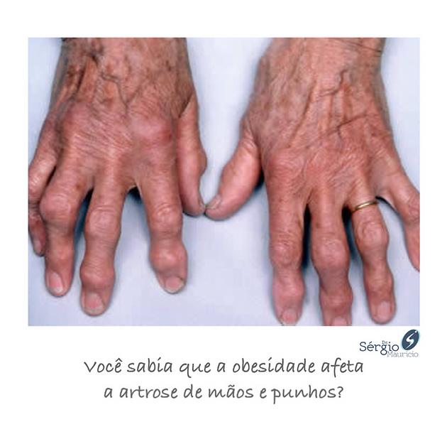 artrose mãos tratamento