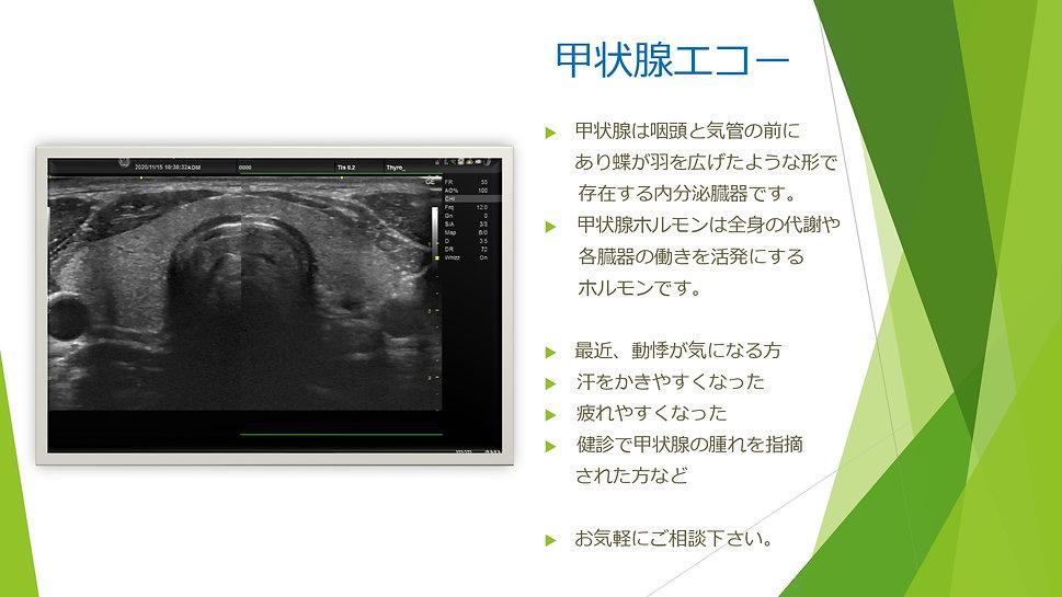 エコー_page-0005.jpg