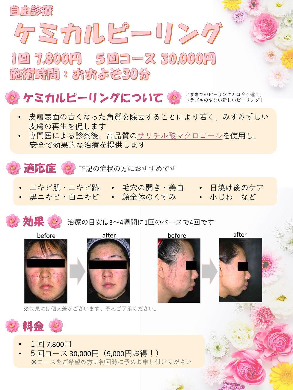 ケミカルピーリング_page-0001.jpg