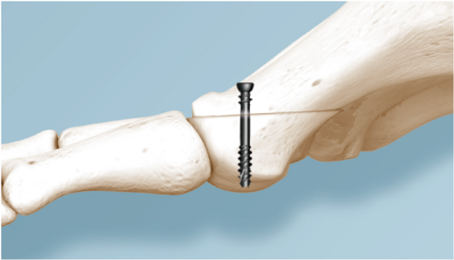 CoLag-screw-Weil-Osteotomy-indication.pn
