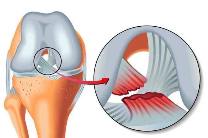 Rupture-des-ligaments-croises-symptomes-