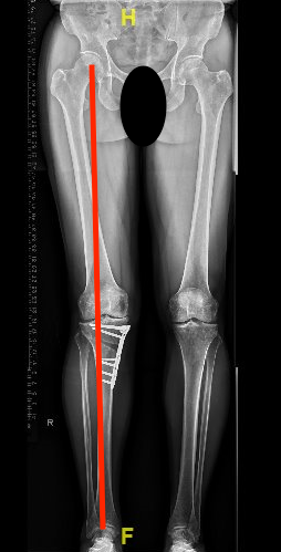 Knee Osteotomy.png