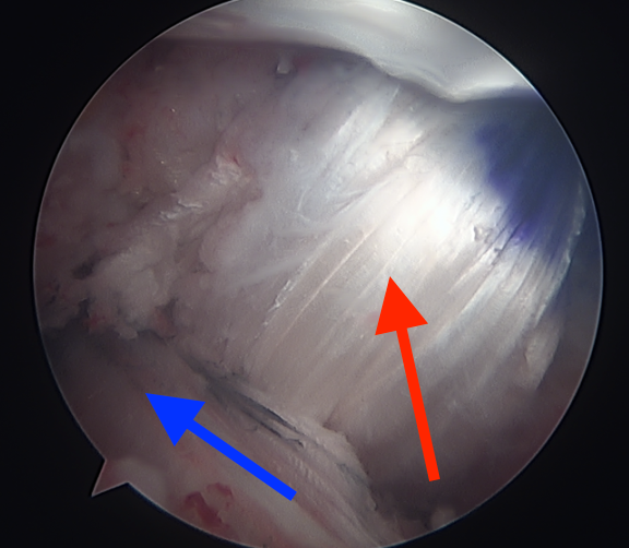 PCL and ACL Reconstruction.bmp