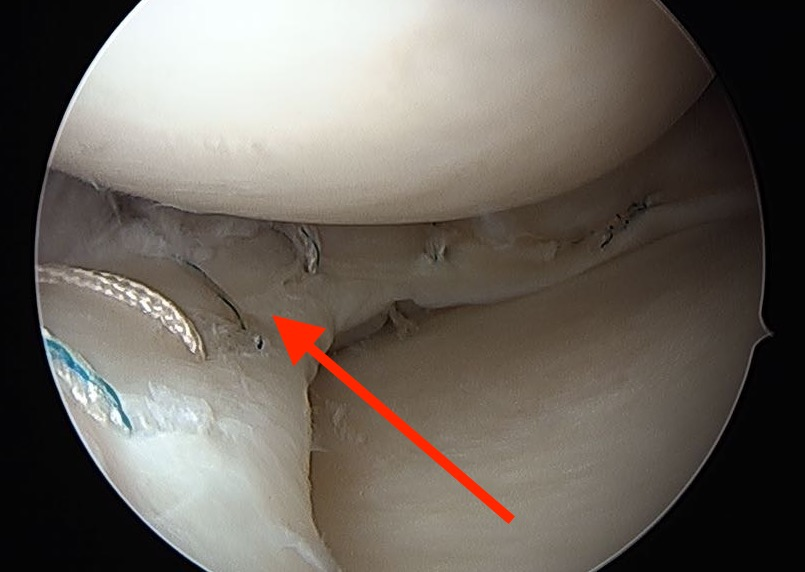 Repaired Buckethandle Meniscus.jpg