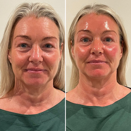 Would you like to achieve an ultimate skin renu?