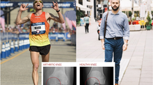 Who is at greater risk of developing hip  and knee arthritis?  Marathon runners or every day people?