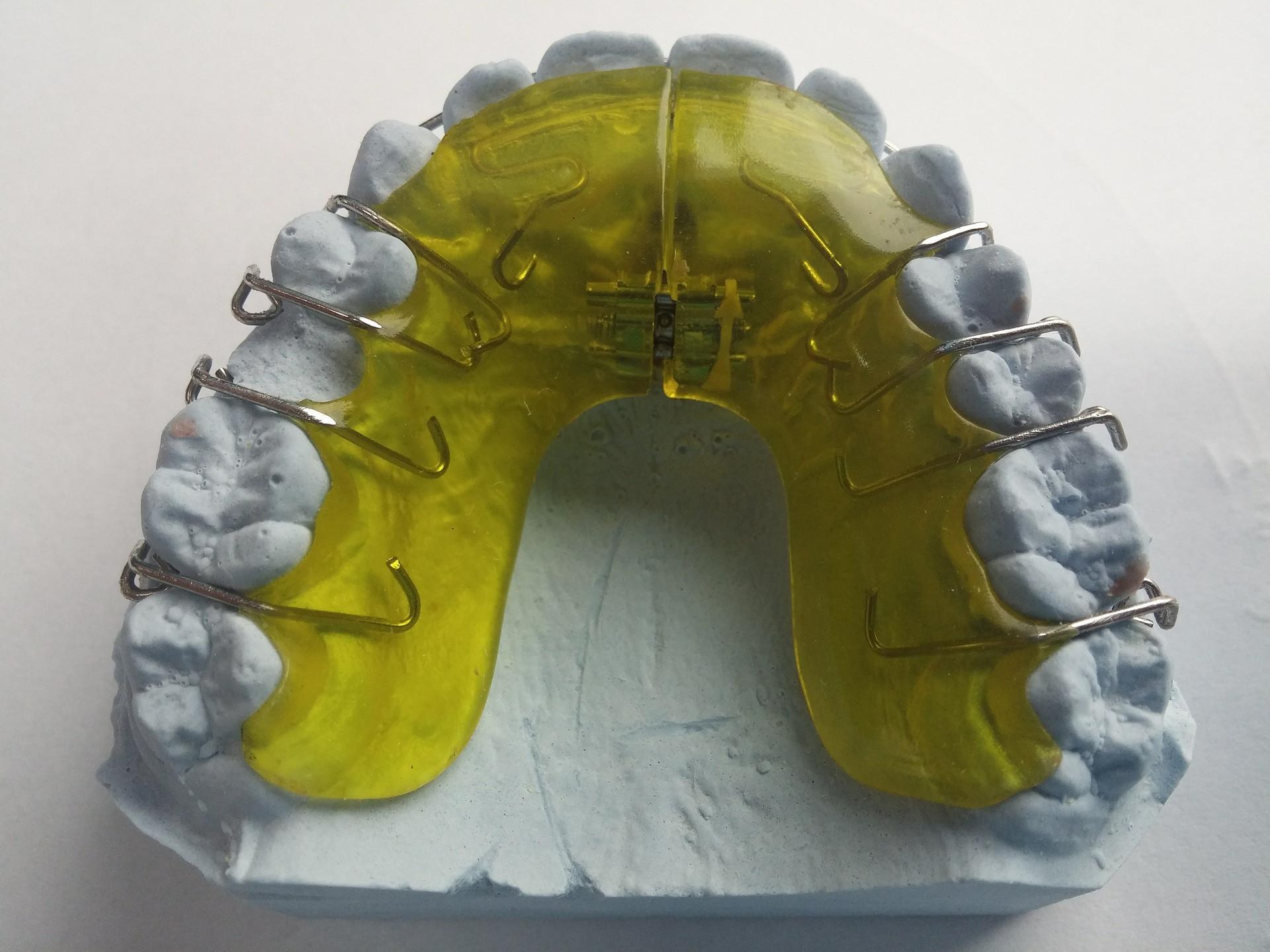 Orthodontic Service