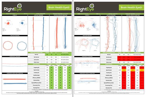 RightEye Test Results