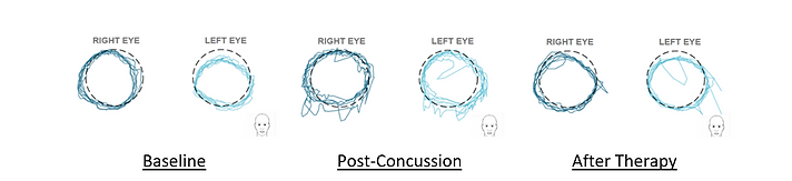RightEye Concussion treatment Test Results