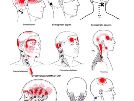 Effective Treatment for Headaches and Migraines
