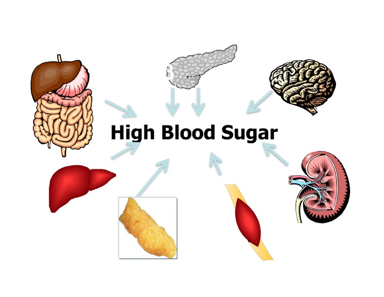 High Blood Sugar
