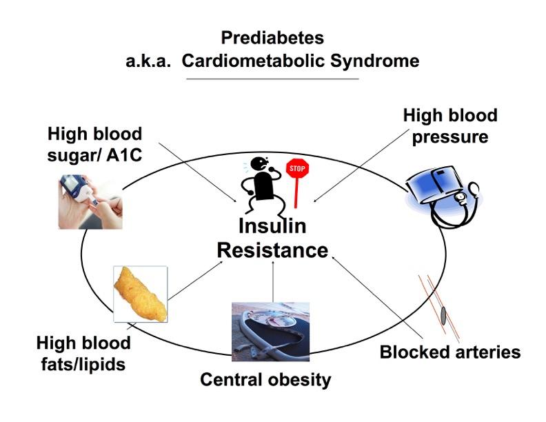 Cardiometobolic Syndrome