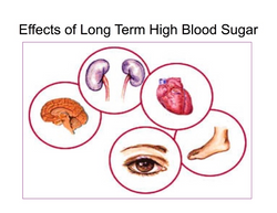 Effects of Long Term High Blood Sugar
