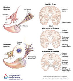 Brain and Nerve Cell Changes