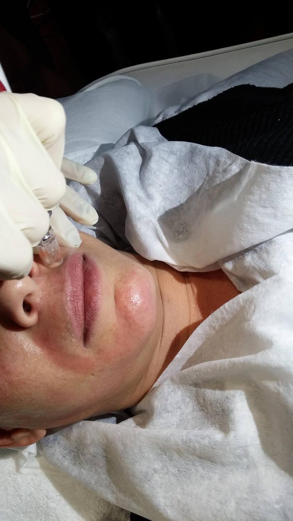 טיפול העלמת קמטים וצלקות מזוטרפיה