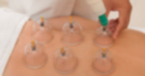 Cupping image for website 3.jpg