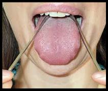Benefits of Tongue Scraping