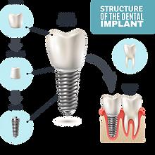 DentalImplantStructure.png