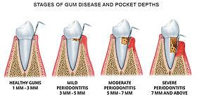 gum_disease_pocket.jpg