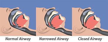 sleep-apnea-illustration.jpg