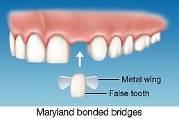 maryland-bridges2.jpg