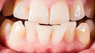 crooked teeth.jpg