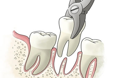 Caring for your Mouth After a Tooth Extraction