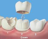crown (1).jpg