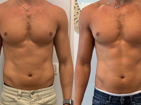 הסרת שומן ללא ניתוח   הקפאת שומן והצרת היקפים