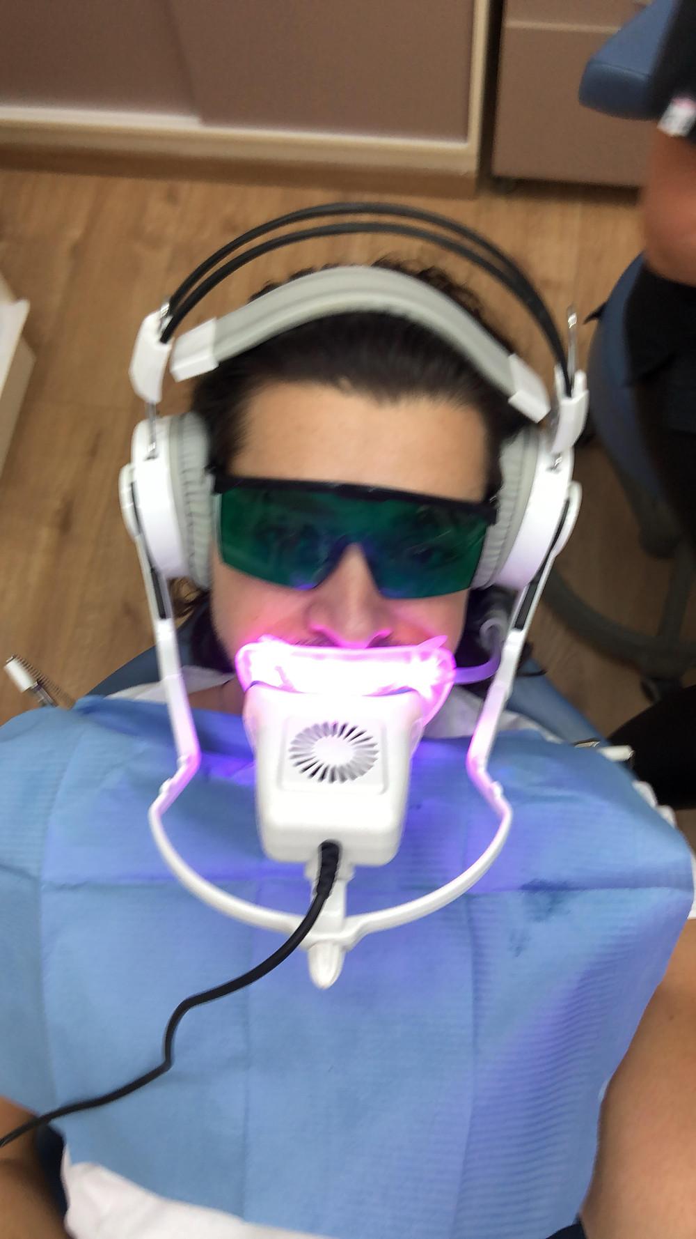 """הלבנת שיניים, הלבנת שיניים בלייזר, הבהרת שיניים, הלבנת שיניים ביתית, מחיר הלבנת שיניים, כמה עולה הלבנת שיניים, מה המחיר של הלבנת שיניים, הלבנת שיניים במרכז, הלבנת שיניים באשדוד, הלבנת שיניים בעיר אשדוד, מחיר הלבנת שיניים באשדוד, הלבנת שיניים שטיפול לייזר, ד""""ר מיכל ליאפיס, מיכל ליאפיס, רופאת שיניים, אושרי בוזגלו, Oshri bozaglo"""