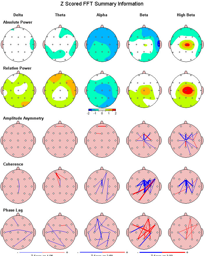 BRAIN MAPPING (QEEG)