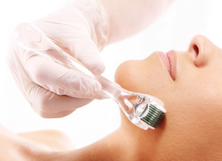 Don't be afraid of Micro-Needling
